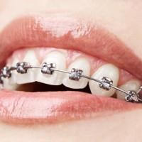 La ortodoncia como una solucion a las malposiciones dentarias