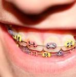 Etapas del Tratamiento de Ortodoncia