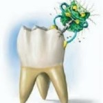 prevención de caries dental