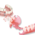 protesis dental fija o removible
