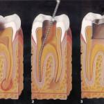 etapas de la endodoncia o tratamiento de conducto realizado en el centro Odontologico Santa Barbara Bendita