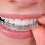 ortodoncia con invisalig o clear aligner
