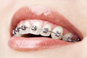 ortodoncia con brakets autoligados