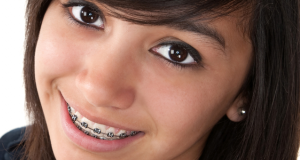 ortodoncia economica en Valencia, Centro Odontologico Santa Barbara