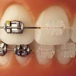 ortodoncia invisible con brackets de zafiro