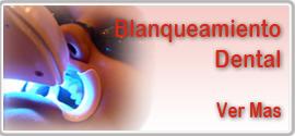 blanqueamiento dental, centro odontologico Santa Barbara Bentida, Valencia, Venezuela
