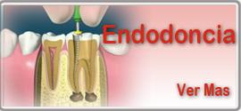 Endodoncia, tratamiento de conducto