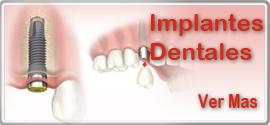 Implantes dentales, Centro Odontologico Santa Barbara Bendita, Valencia, Venezuela