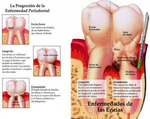 progresion de la Enfermedad periodontal