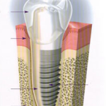 implante dental en centro odontologico Santa Barbara Valencia Venezuela