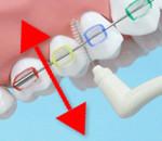 cepillo para ortodoncia